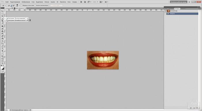 teeth-01
