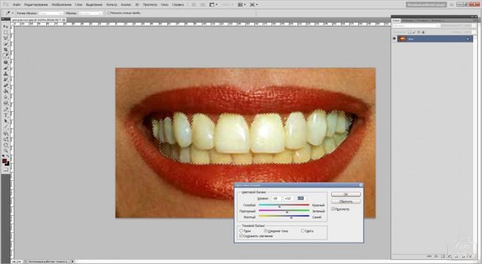 teeth-06