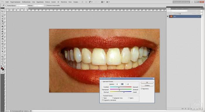 teeth-07