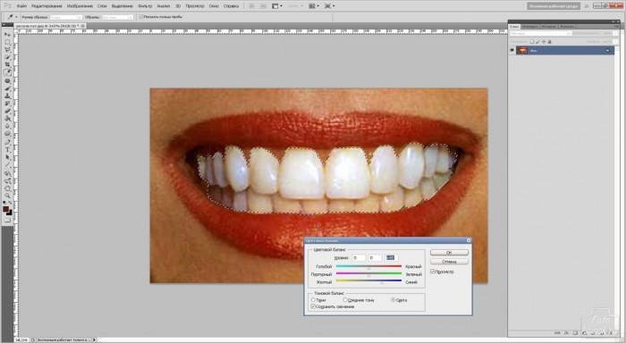 teeth-08